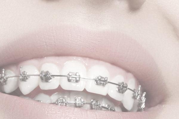 orthodontie et ostéopathie